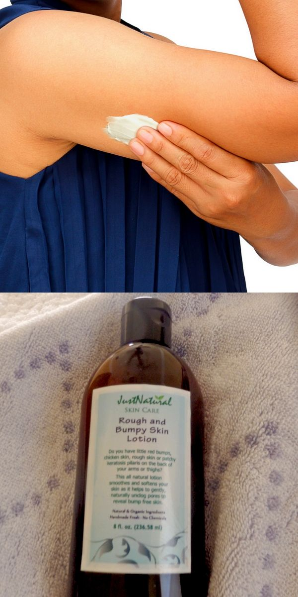Rough Bumpy Skin Lotion -  You Can Finally Treat Those Annoyin Back-of-the- Arm Bumps and More.