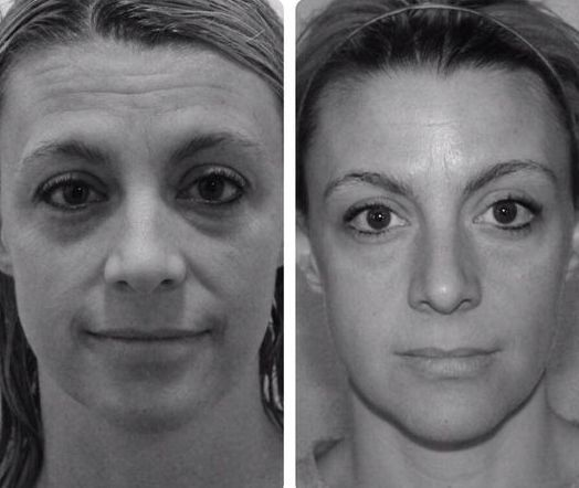 Face Yoga Routines: Look More Youthful And Get A Holistic Facelift With Face Training Gymnastics