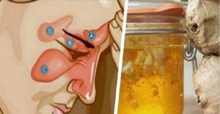 A sinusite é um problema causado devido à inflamação e inchaço dos seios da face.Esta situação bloqueia os seios com secreções nas quais se desenvolvem bactérias.A pessoa que sofre de sinusite sente grande pressão em torno do rosto, nariz e olhos.