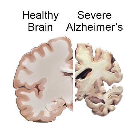 Get the facts about Alzheimer's disease, the most common cause of dementia in older adults. Learn about symptoms, diagnosis, treatment, and caregiving.