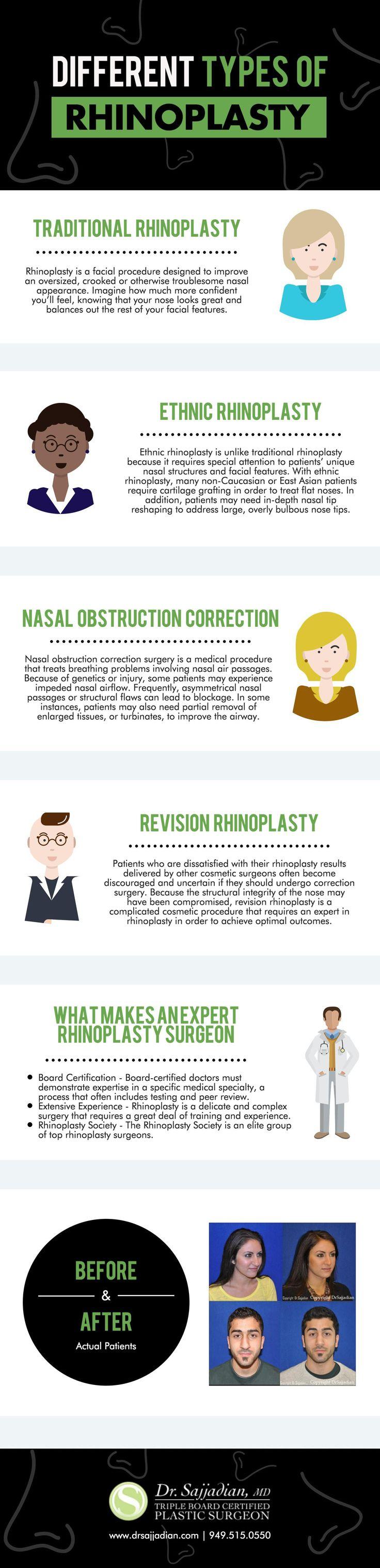 #rhinoplasty #ofdifferent #different #types #ofTyp…