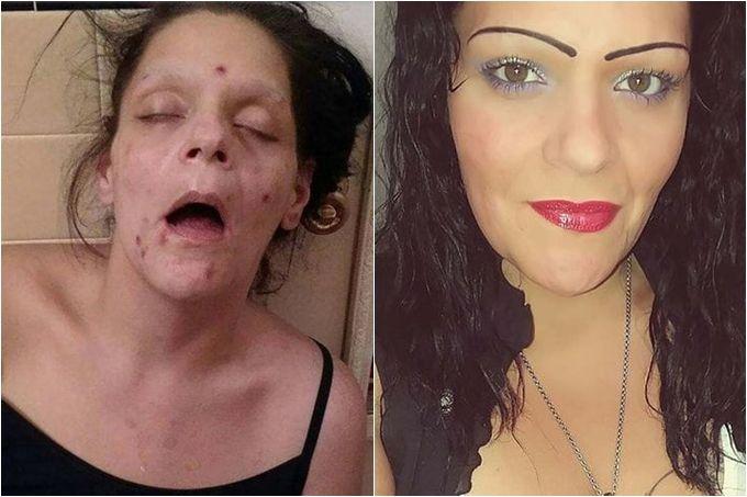 ¡Fotos impactantes! El antes y después de una mujer adicta a la heroína