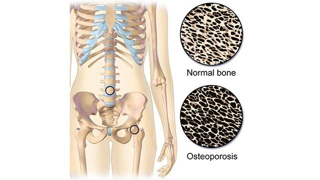 40+ What to know about osteoporosis viral