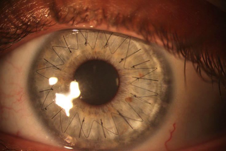 Des points de suture dans l'oeil  photographie des points de suture qui tiennent en place la cornée dans un oeil suite à une greffe.