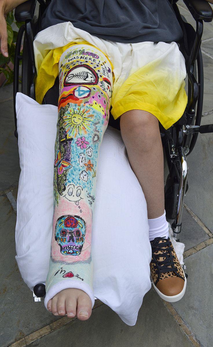 17 best ideas about leg cast on pinterest llc cast arm for Arm cast decoration ideas