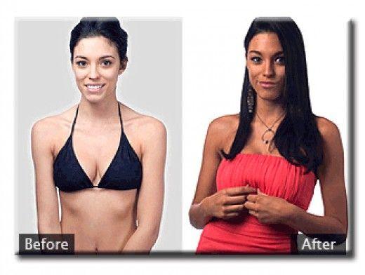 Unreal Melanocyte Stimulating Hormone Fake Tan Results
