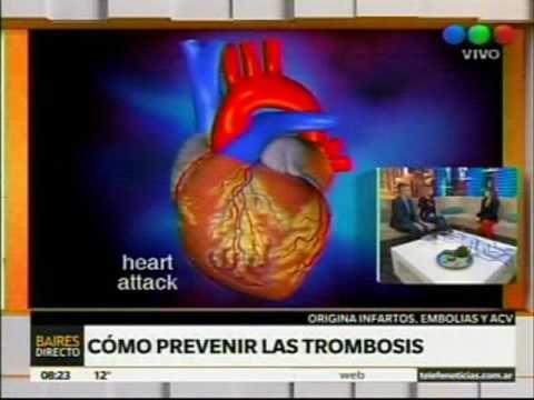 TELEFÉ 'Baires Directo' 30/9/16 - Dra. Rossi / Día Mundial de la Trombosis