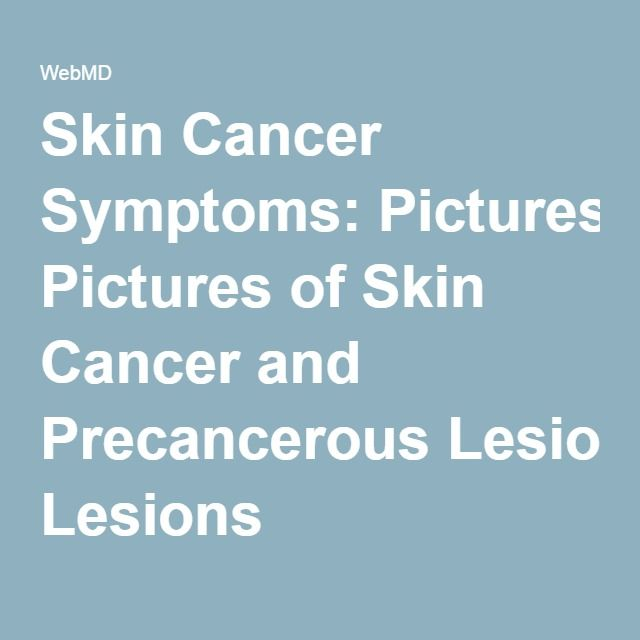 Skin Cancer Symptoms: Pictures of Skin Cancer and Precancerous Lesions