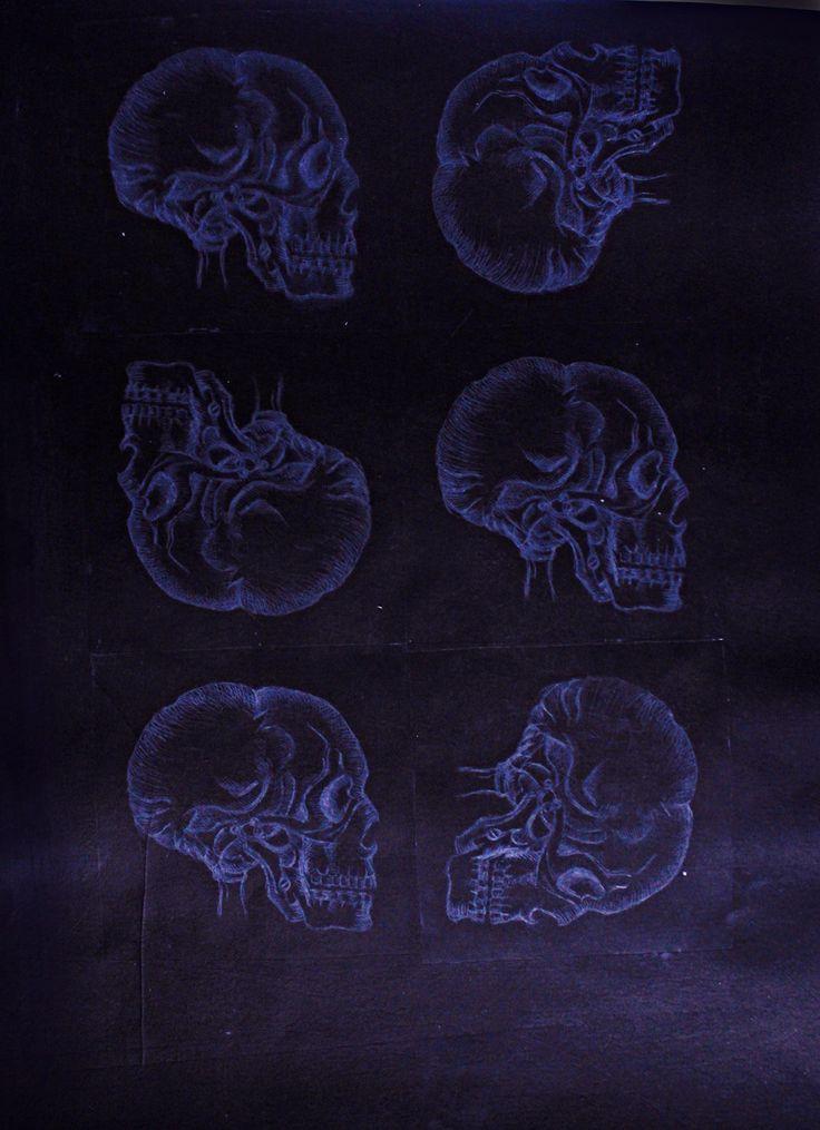 GRAVURE sur plaque offset , Radiologie tirage 1/2