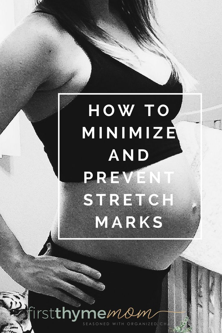 How to minimize and prevent stretch marks during pregnancy.