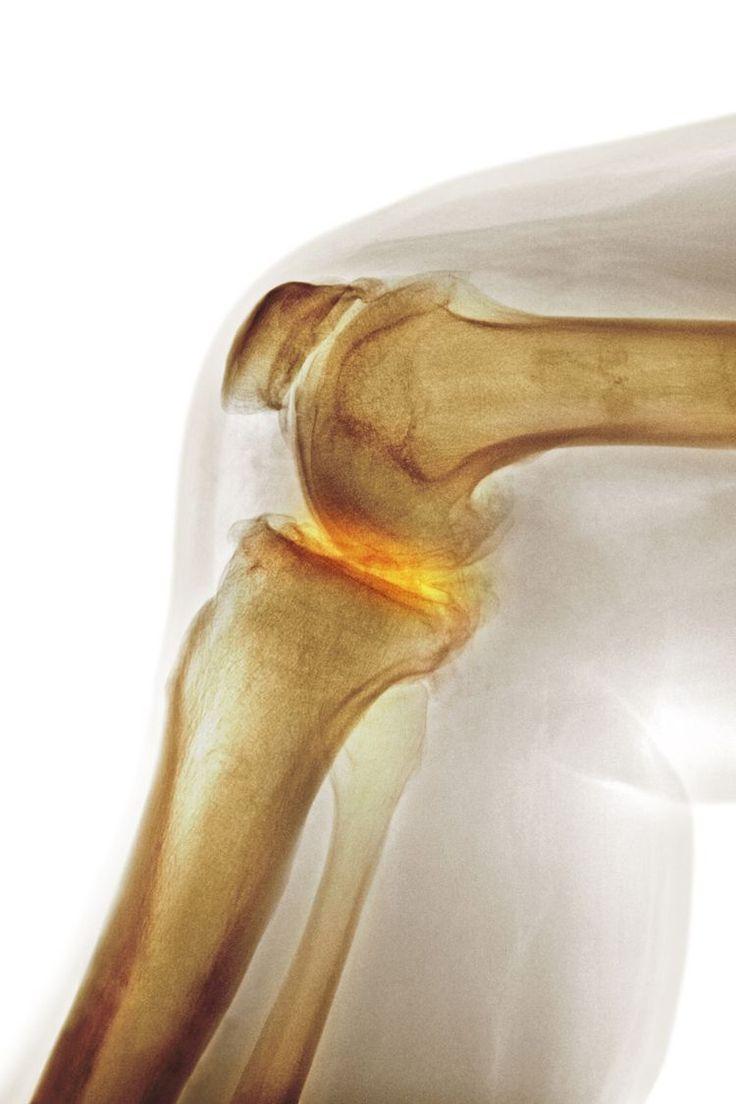 What is Bone Marrow Edema in Osteoarthritis?