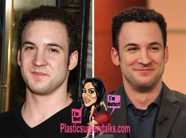 Ben Savage Nose Job Before & After - http://plasticsurgerytalks.com/ben-savage-nose-job/
