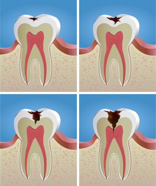 La caries dental: Un enemigo silencioso. Enterate porque Salud y Bienestar http://paraadelgazar.ws/la-caries-dental-un-enemigo-silencioso-enterate-porque/