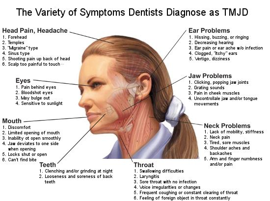 TMJ symptoms diagram: Heaches, migraine, sinus, shooting pain, scalp pain, ear problems, hissing, uzzing, ringing, decreasing hearing, ear p...