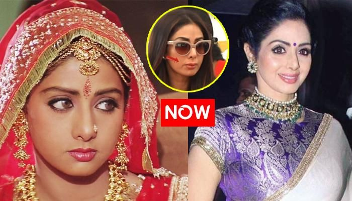 Sridevi's Lip Job Goes Horribly Wrong And It Reminds Us Of These Tricks To Get Fuller Lips At Home