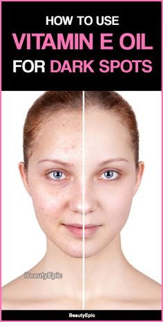How to Use Vitamin E Oil to Remove Dark Spots on Face?