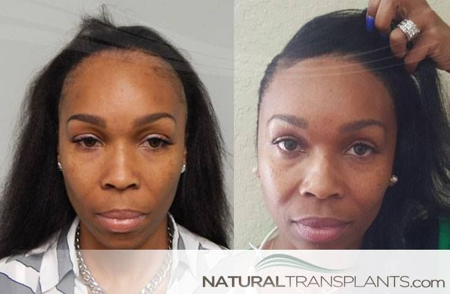 Traction Alopecia Cure | Before and After Hair Transplant