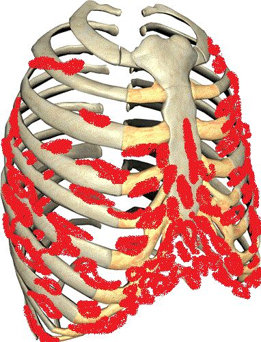 This is a picture of how Dercums Disease attaches itself to the rib cage, and chest wall. Each Lipoma, or rope like lump is benign, but causes Neuropathy type pain. Removal is difficult, and many times comes back worse. These abnormal tumors affects breathing. Making the chest feel tight. Pleurisy type pain.