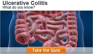 Microscopic Colitis (Lymphocytic Colitis and Collagenous Colitis) Symptoms, Causes, Treatment | MedicineNet (sorry, the image says Ulcerative Colitis... it was the only good pinnable image available)