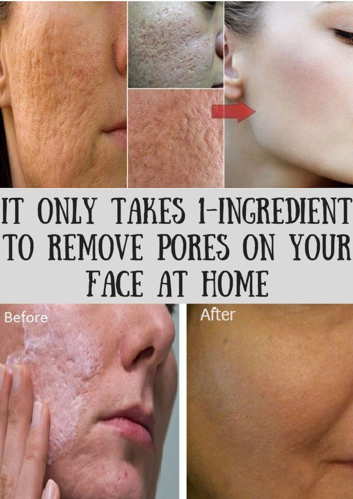 It Only Takes 1-Ingredient To Remove Pores On Your Face At Home