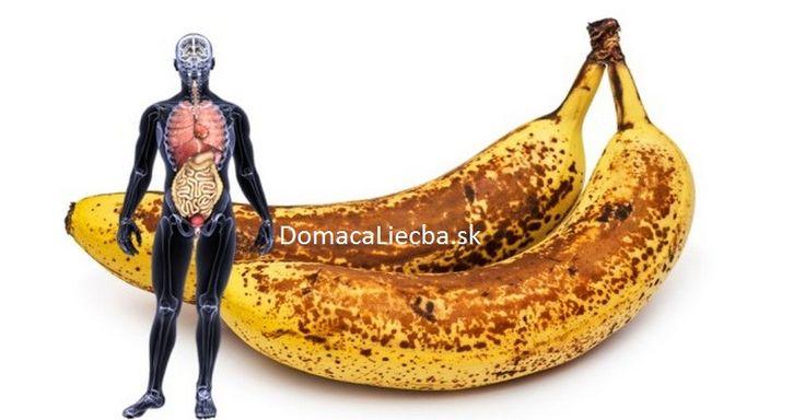 Považujete banány za také bežné ovocie, nad ktorým sa už ani nezamýšľate? Keď zistíte, čo všetko dokáže, zaručene naň zmeníte svoj názor.