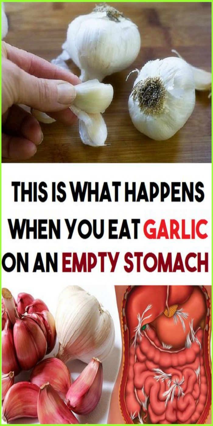 This Is What Happens When You Eat Garlic On An Empty Stomach What Happens When You Garlic Health Benefits Garlic Benefits