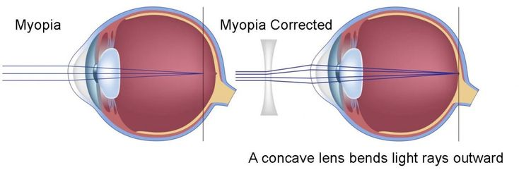 marketing myopia myopia How to avoid myopia and remain relevant it plays out in everything from the design of the app to their refreshingly breezy marketing efforts.