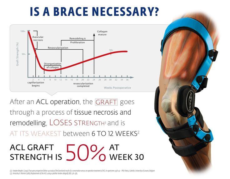 donjoy, acl injury, acl graft, knee brace