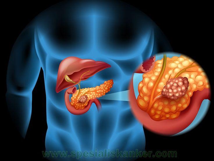 Kanker Pankreas  Kanker pankreas dimulai di jaringan pankreas yaitu organ dalam perut Anda yang terletak horizontal di belakang bagian bawah perut Anda. Pankreas mengeluarkan enzim bantuan untuk pencernaan dan hormon yang membantu mengatur metabolisme gula.  http://www.spesialiskanker.com/kanker-pankreas/