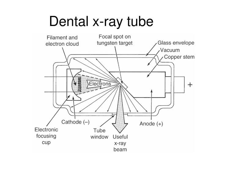 dental x machine parts