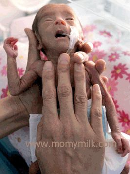 Penyebab Lain Bayi Lahir Prematur | momymilk