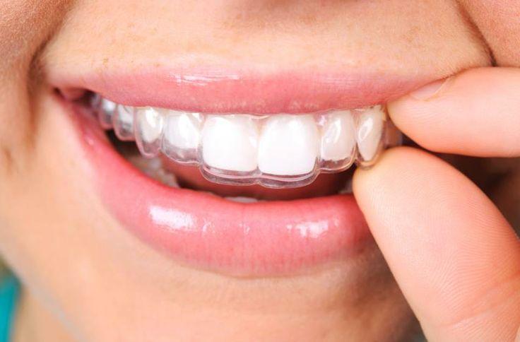 """Contenţia reprezintă păstrarea rezultatelor obţinute cu terapia ortodontică """"activă"""" şi trebuie să aibă o durată de cel puţin o jumătate din durata tratamentului activ. Pentru a se asigura """"fixarea"""" dinţilor în noua poziţie, trebuie ca ei să mai fie ţinuţi pe loc pentru o perioadă suplimentară.  Pentru detalii si programari, adresati-va medicului ortodont: 0723.726.125 / 031.805.9027 / contact@gentledentist.ro"""