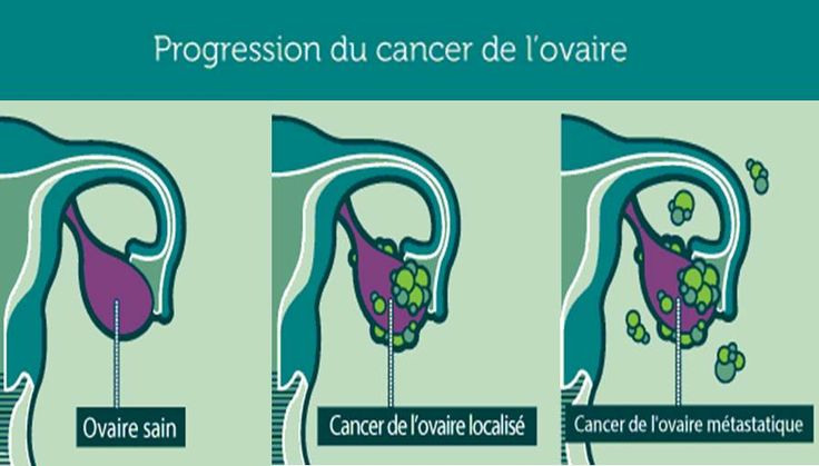 Le cancer des ovaires est très redouté à cause de l'apparition très tardive de ses symptômes et de son taux de récidive très élevé. À un stade de développement avancé, les chances de guérison sont très réduites. Pour minimiser les risques, il faut être à l'écoute de votre corps et savoir décoder les messages alarmants qu'il vous envoie. Voici les signes précurseurs du cancer des ovaires.