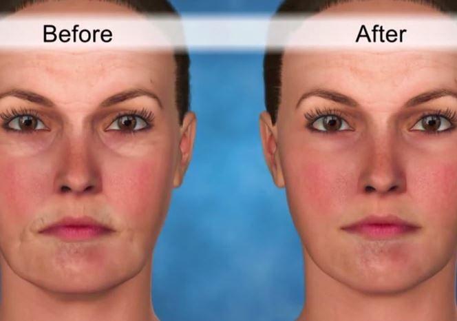 Scopri in cosa consiste al giorno d'oggi un trattamento di minilifting viso; diciamo finalmente addio a tagli lunghi, dolorosi e difficili da guarire