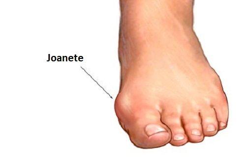 Os joanetes são uma infecção que causa a deformação da articulação do dedão do pé, e podem estar associados a fatores genéticos e a calçados inadequados.