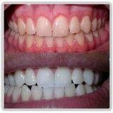 clareamento para os dentes na Vila Andrade