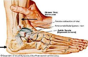 Ankle Sprains:  Grade 1 stretching with minor tearing  Grade 2 Partial tear   Grade 3 Full Rupture  * Type 2 and 3 might have an Xray done to see if there was a fracture involved.
