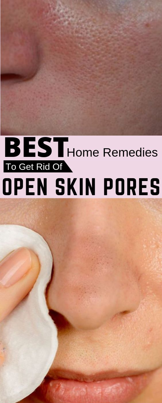 Why Large Pores Appear And How To Get Rid Of Them