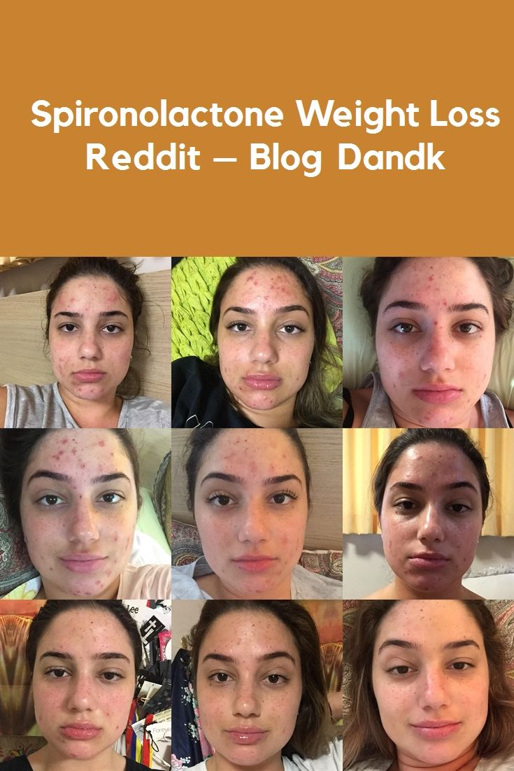 Pin On Weight Loss Before And After Reddit