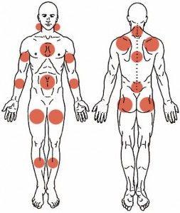 Wat is Fibromyalgie: Symptomen en klachten