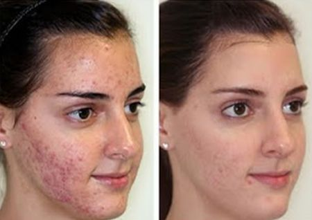 If you or someone you know suffers from acne you should try the 2 minute miracle gel www.2minute-miracle-gel.com