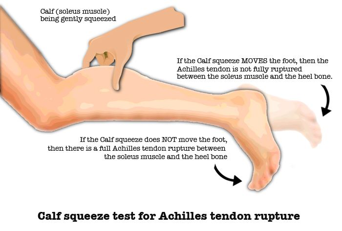 Definition: The Thomson test is performed when making the diagnosis of a torn Achilles tendon. To perform the Thompson test, the patient should lie face-down on the examination table. The feet extend farther than the end of the bed. The examiner then squeezes the calf muscle. This motion, in a normal patient, should cause the toes to point downward as the Achilles pulls the foot. In a patient with a ruptured Achilles tendon, the foot will not move. That is called a positive Thompson test.