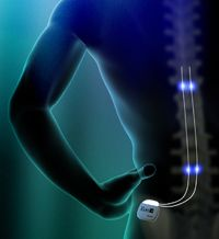 Well known Clinic in Discogenic Back Pain, Post Herpetic neuralgia, #Spinal #Cord #Treatment in #Mumbai. PCI offer Spinal cord stimulation is an innovative technology.