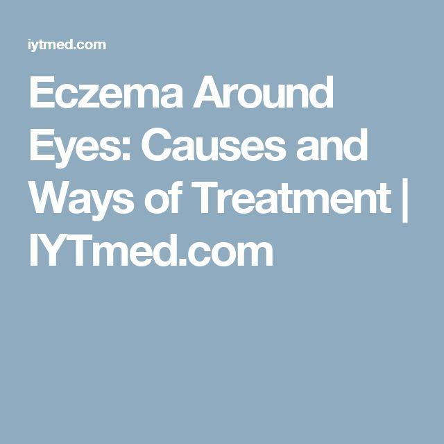 Eczema Around Eyes: Causes and Ways of Treatment | IYTmed.com