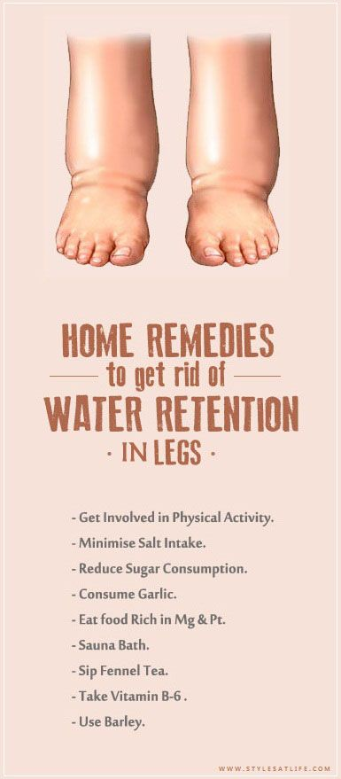 How to Get Rid of Water Retention In Legs and Feet.