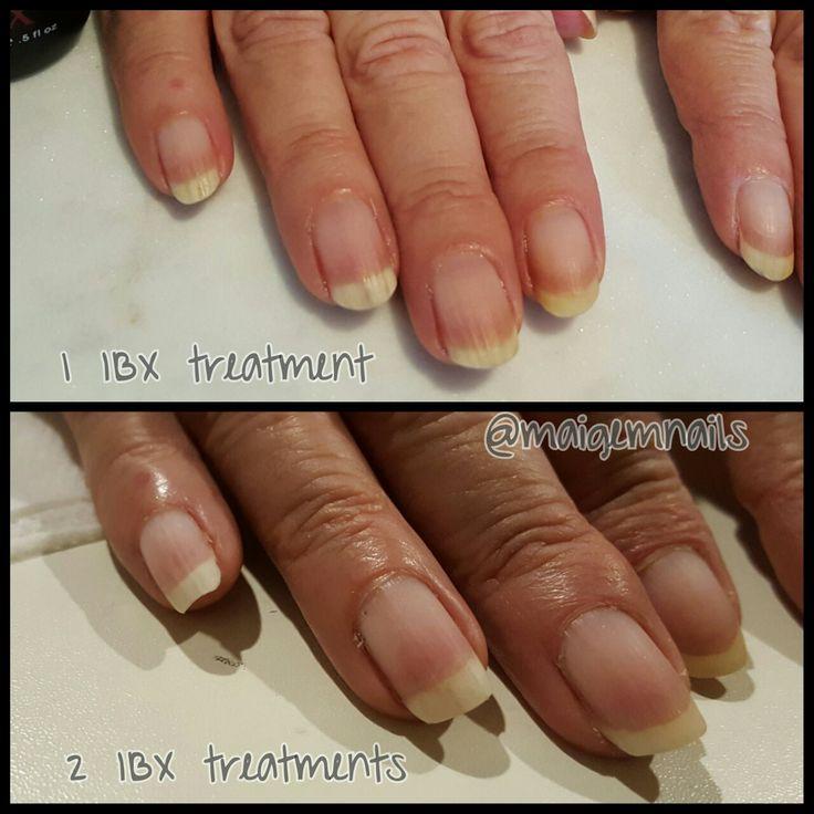 Ibx treatments!! @maigemnails