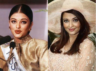 Aishwarya Rai Plastic Surgery