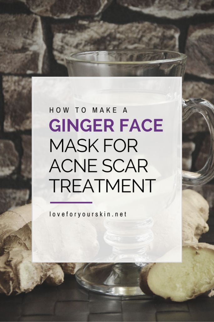 How to Make a Ginger Face Mask for Acne Scar Removal #AcneScarsFade #AcneRemedie…