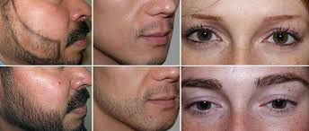 What you must know about Facial Hair Restoration?
