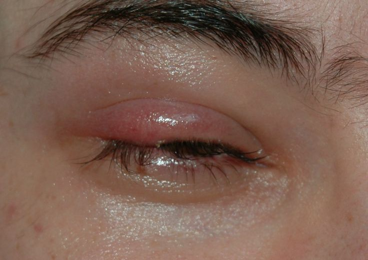 24 Easy and Safe Ways to Get Rid Of Styes Fast at Home | Why do I Have a Red Bump on My Eyelid?